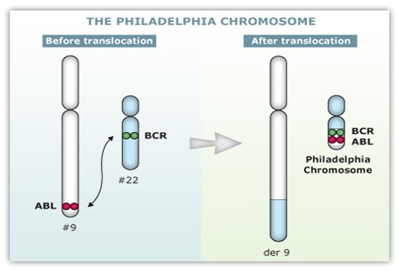 leucemia-mieloide-cronica